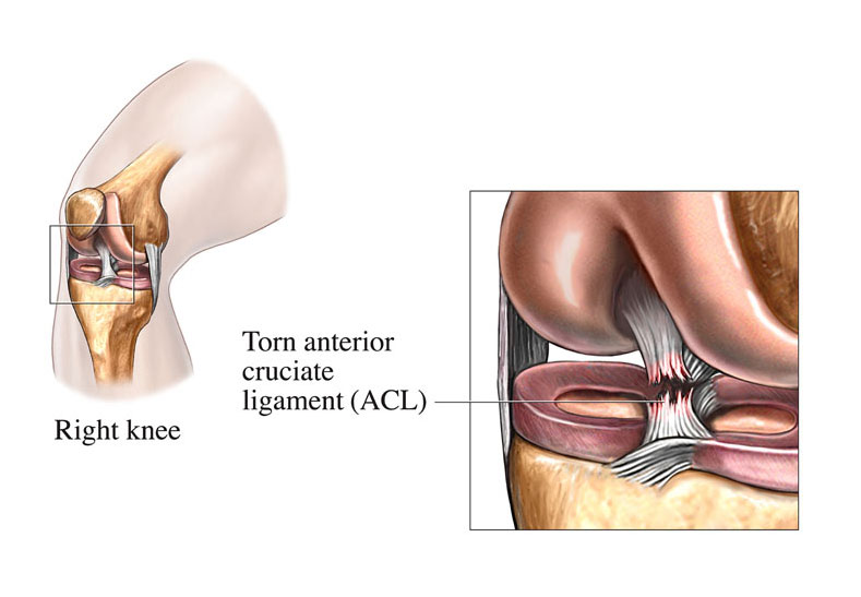 Image – Anterior cruciate ligament injury