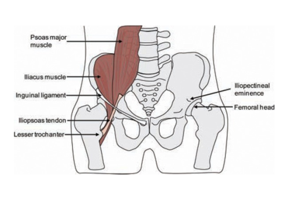 Internal snapping hip occurs anteriorly by abrupt movement of the iliopsoas tendon. The iliopsoas te