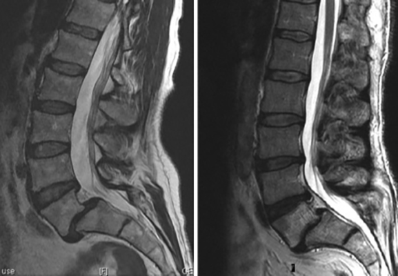 mid grade 1 retrolisthesis All though you can have slippages in the lower and middle section of your spine   grade 1 — up to one-fourth grade 2 — from one-fourth to one-half grade 3.